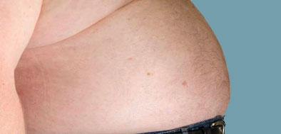 bröstcancer män bilder